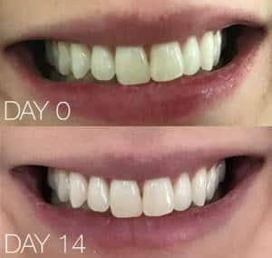 POPWHITE Dental Cosmetic Set