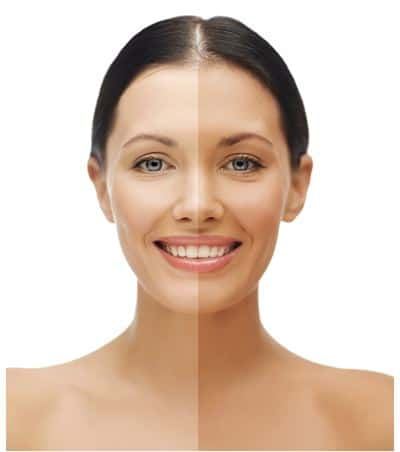 artificial beauty A beauty mark or beauty spot is a euphemism for a type of dark facial mole, so named because such birthmarks are sometimes considered an attractive feature medically, such beauty marks are generally melanocytic nevus , more specifically the compound variant.